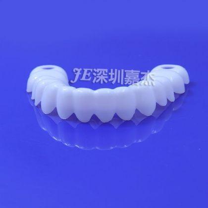 (gui)膠牙套